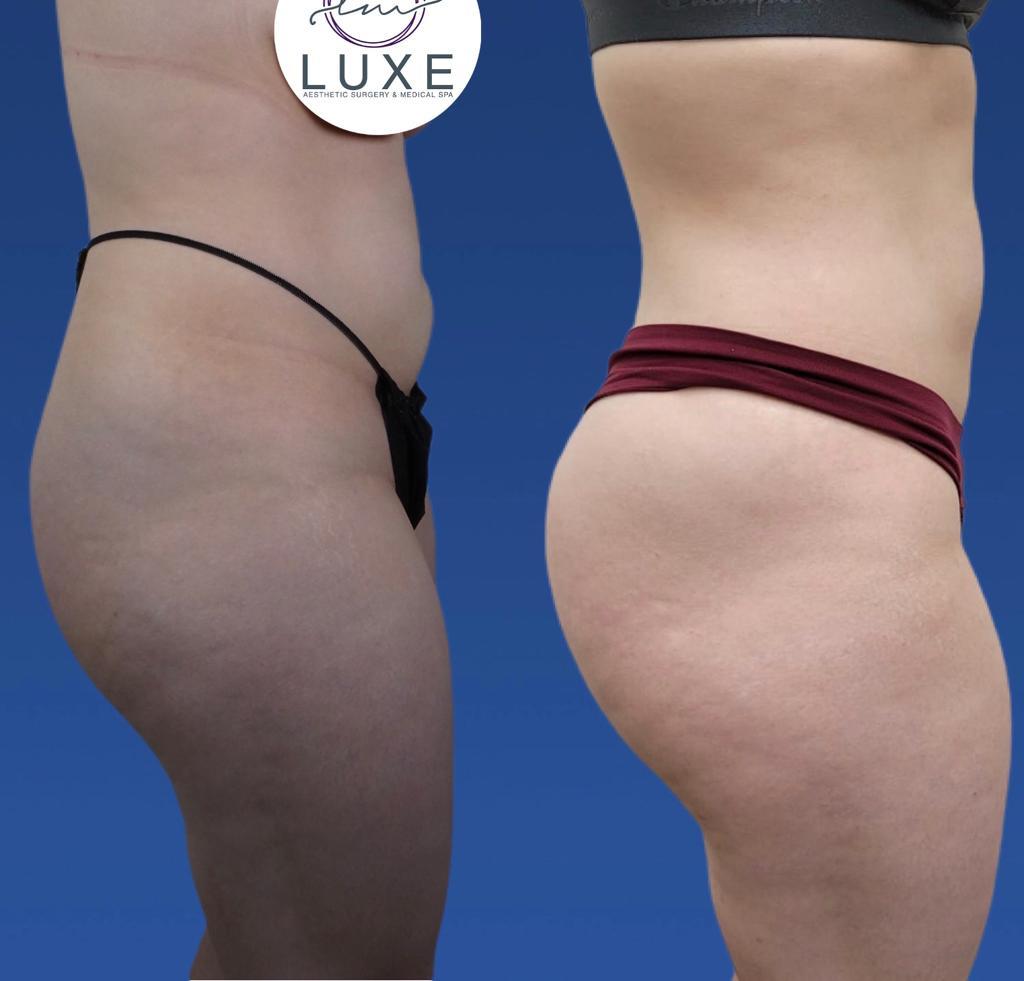 best vaser liposuction surgey oxnard