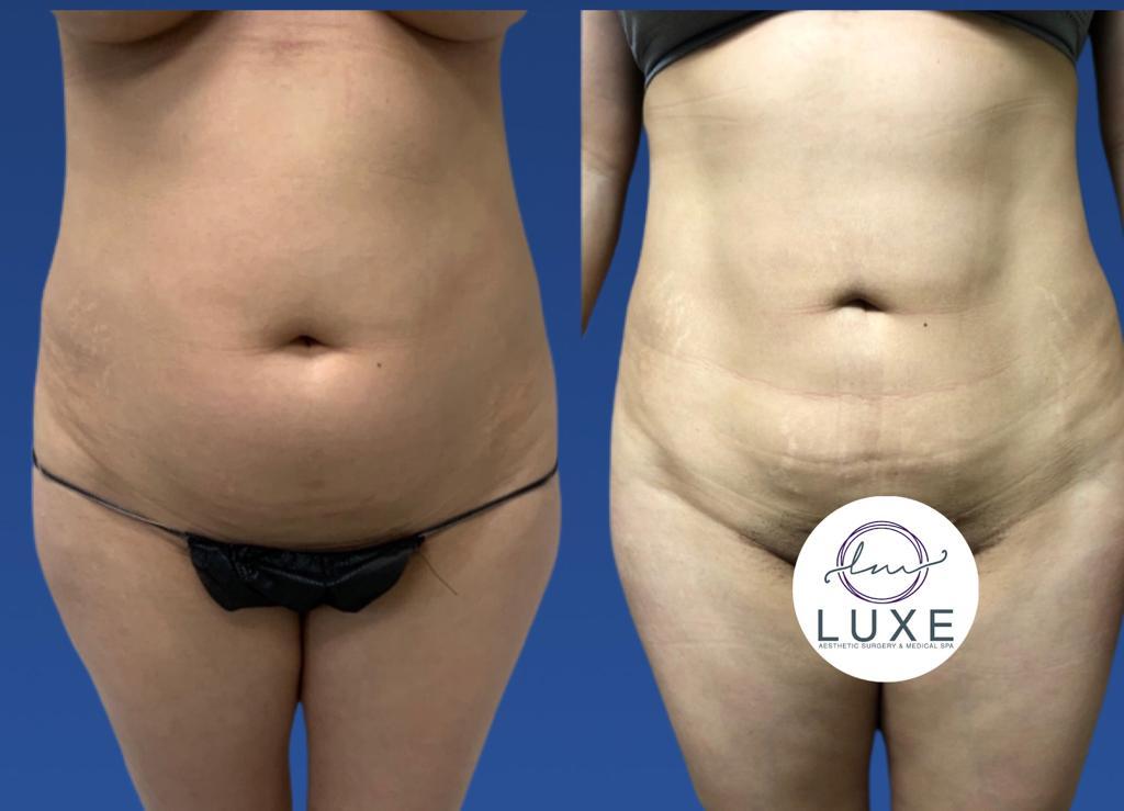 best vaser liposuction surgeon camarillo