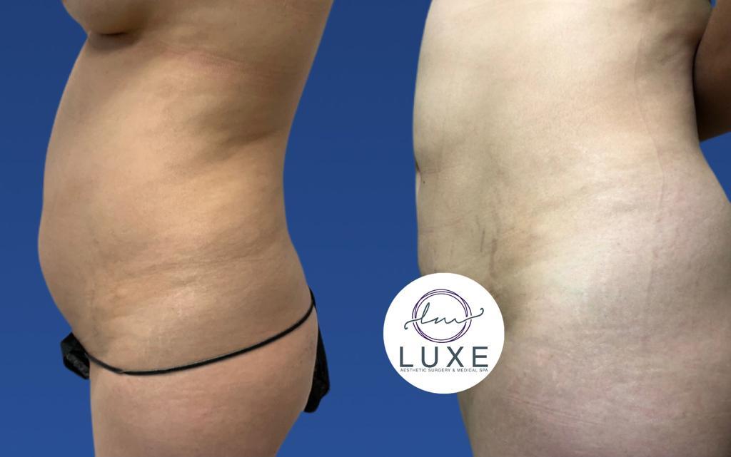 best vaser liposuction treatment ventura