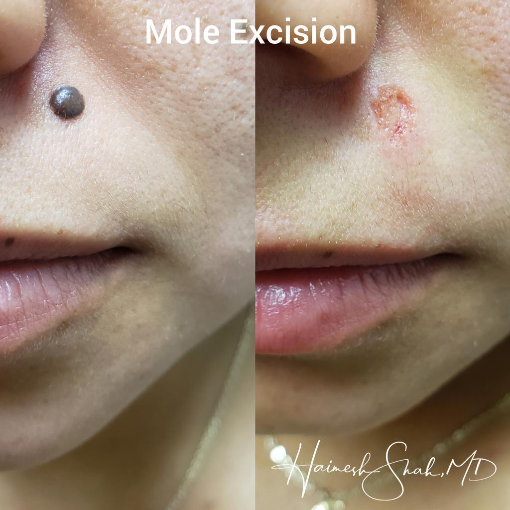 mole-removal clinic