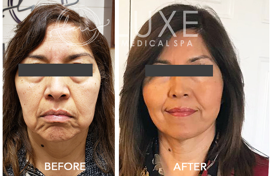 Non-surgical Face Lift in Thousand Oaks