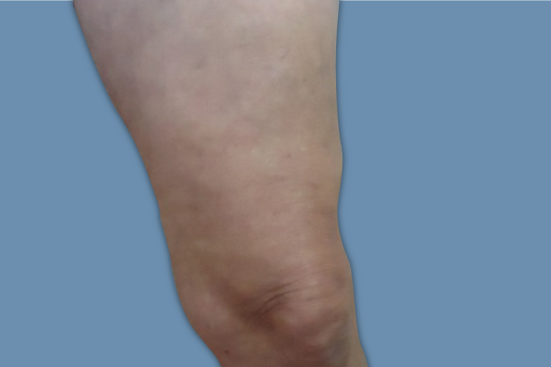 Varicose Vein Removal, Sclerotherapy & Microphlebectomy in Oxnard, CA | Veins Treatment