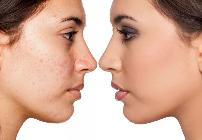 Acne Clear Therapy