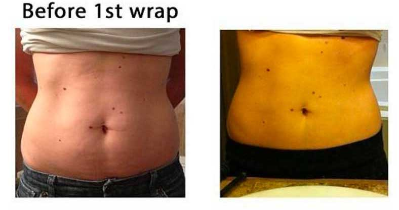 Body Wrap Before & After
