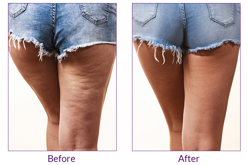 Cellulite Reduction Painless FDA Approved Painless procedure in Oxnard, Ventura and Camarillo