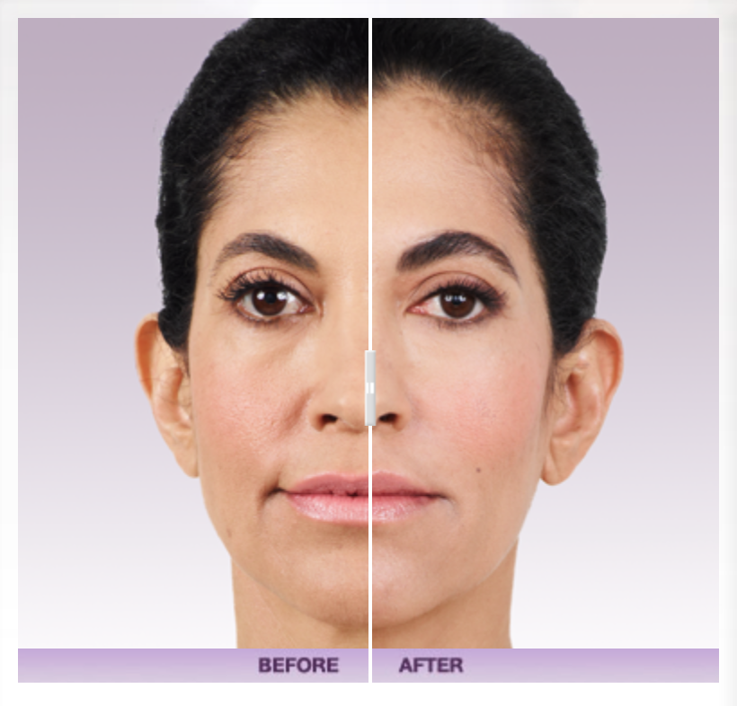 Juvederm Ultra Before & After