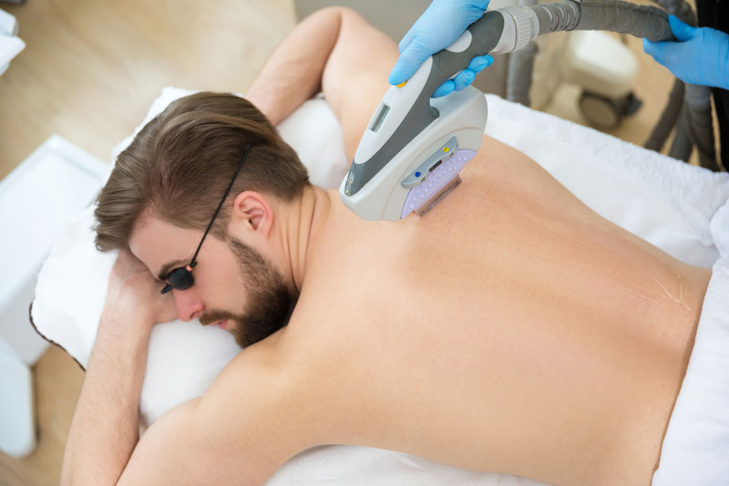 Laser Hair Removal for Men in Oxnard, CA