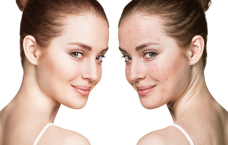 Acne Laser Treatment in Oxnard, CA