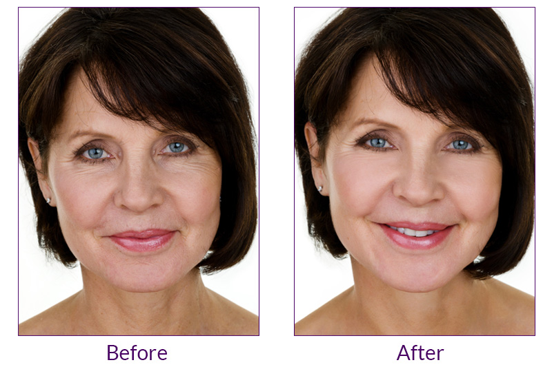 PDO Thread Lift Non-surgical Face Lift in Oxnard, Ventura, Camarillo & Thousand Oaks